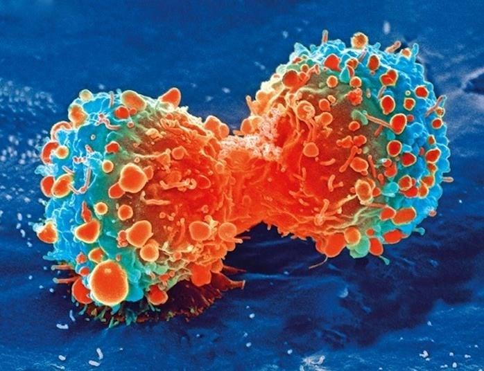 Bir akciğer kanser hücresi.