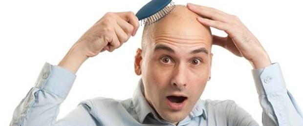 male-baldness.jpg