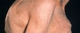 Kemik erimesi erkekleri de etkiliyor