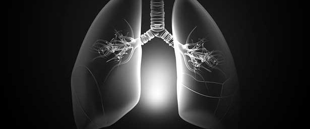 KOAH hastaları Coil ameliyatıyla nefes alıyor.jpg