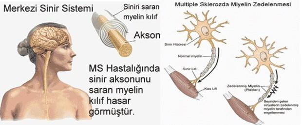 ms-genis-bilgilendirici