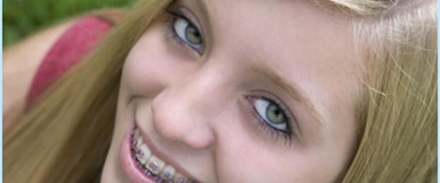 Ortodonti tedavisine yetişkinler de meraklı