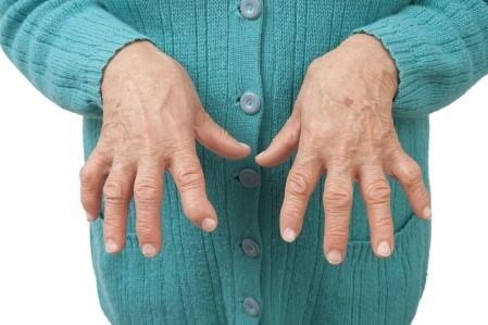 Elledinde romatoid artrit olan bir hasta.