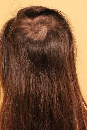 Sonsuza kadar saç kurtulmak: en etkili yöntem