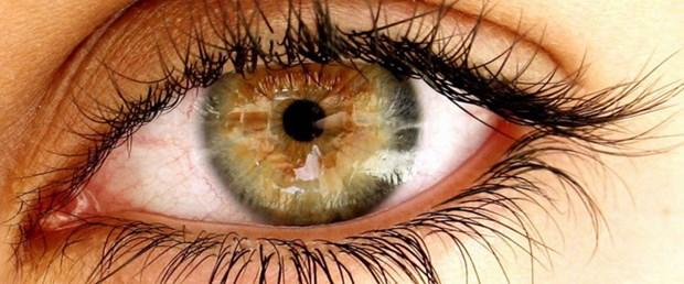 Tedavi edilmeyen sarı nokta hastalığı kör edebilir.jpg