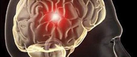 'Titremeye' beyin pili freni