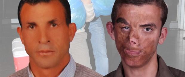 Türkiye'nin ilk yüz nakli ameliyatı