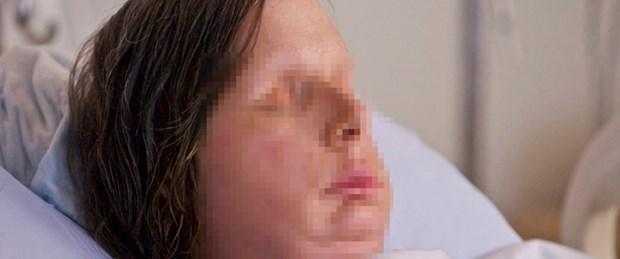 Üçüncü yüz nakli bir kadına