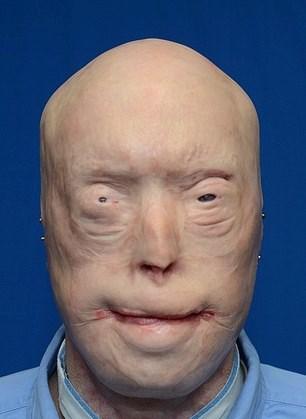 Hardison 14 yıl önce, evi yanan bir kadını kurtarmak isterken yüzünü kaybetmişti.