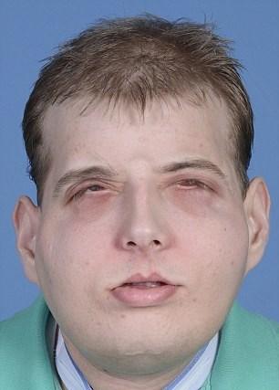 Hardison'a 26 yaşındaki David Rodebaugh'nun yüzü nakledildi.