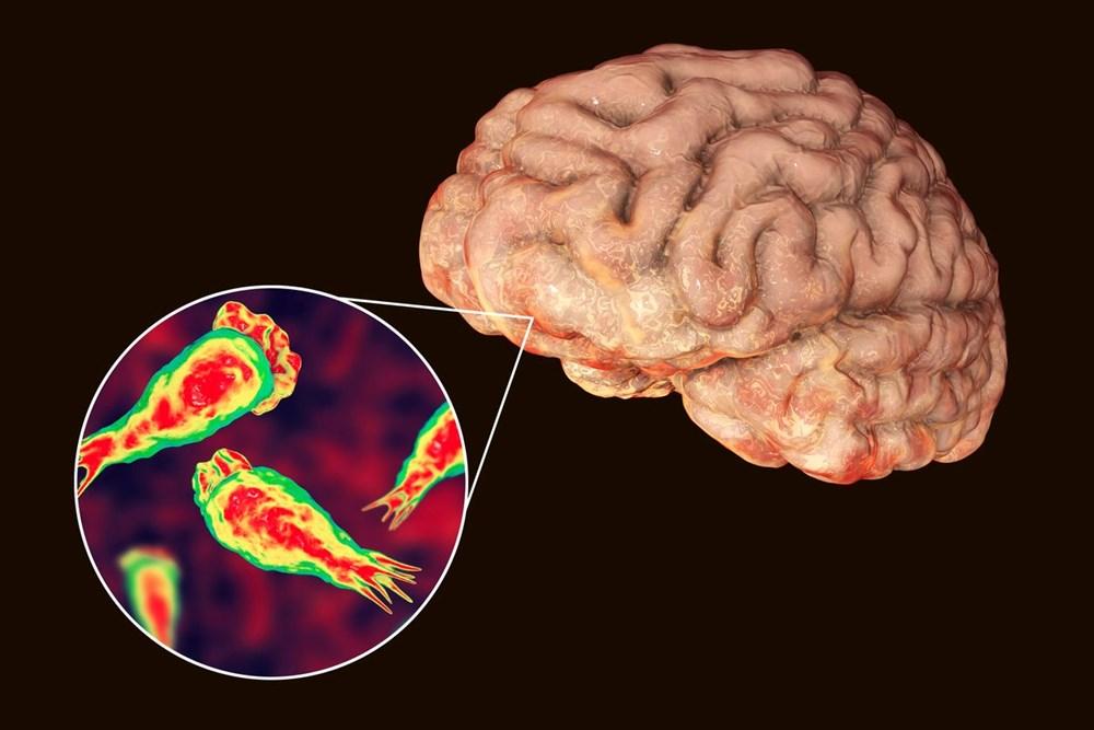 ABD'de bir çocuk beyin yiyen amip nedeniyle hayatını kaybetti - 2