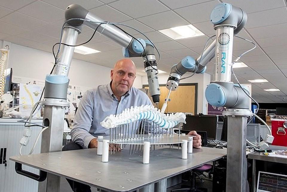 İngiliz basınına konuşanProfesör Phillip Breedon robotunskolyoza ameliyatında bugüne kadar kayıt edilen tüm derecelerden daha iyi sonuç elde ettiğinin altını çizdi.