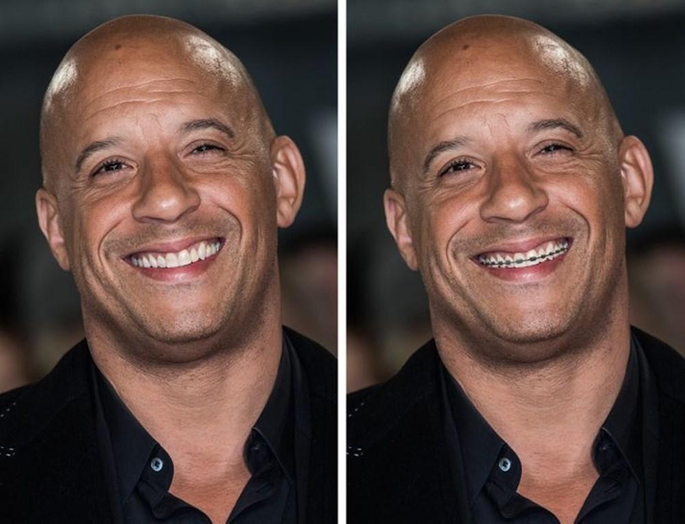 Bir dişin ünlülerin yüz ifadesini ne kadar değiştirebileceğini gösteren fotoğraflar - 8