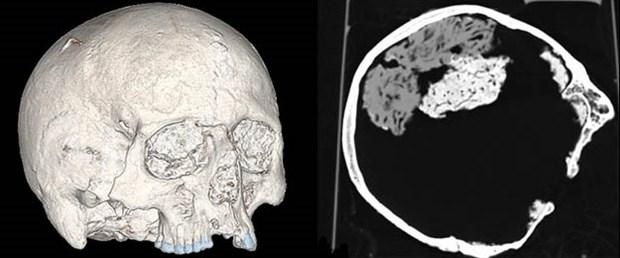 2 bin yıllık insan beyni bulundu