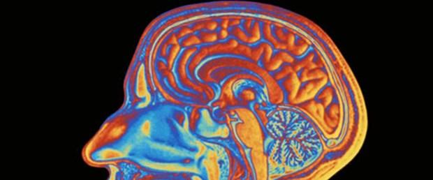 Beyin sinyallerinde 'sözcükleri' gördüler