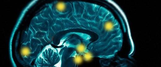 Beyindeki 'kaygı' bölgesi kontrol altında