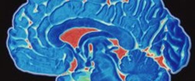 Hafıza kaybına genetik tedavi