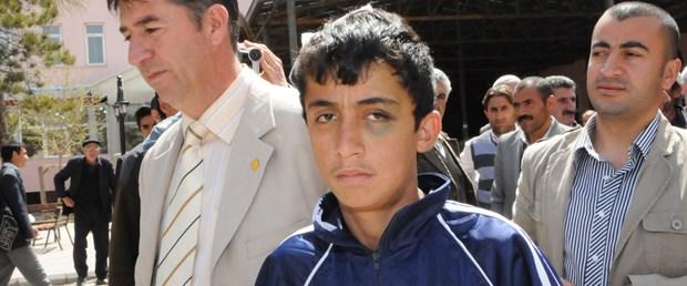 Polisin dövdüğü çocuk taburcu oldu