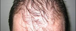 Saç dökülmesi genetik