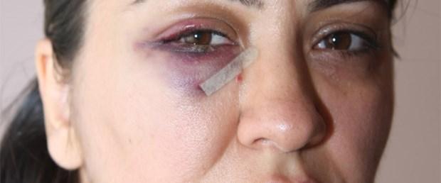Şiddet gören doktora ihmal suçlaması