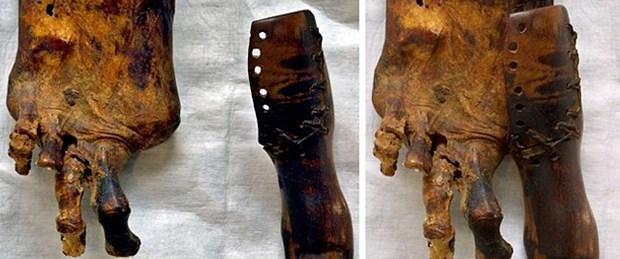 Tıp tarihin bilinen ilk protezleri