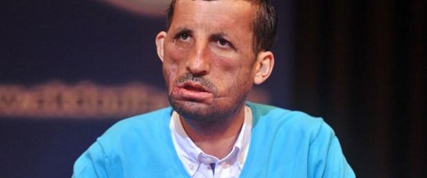 Yeni yüzün bedeli 250 bin lira