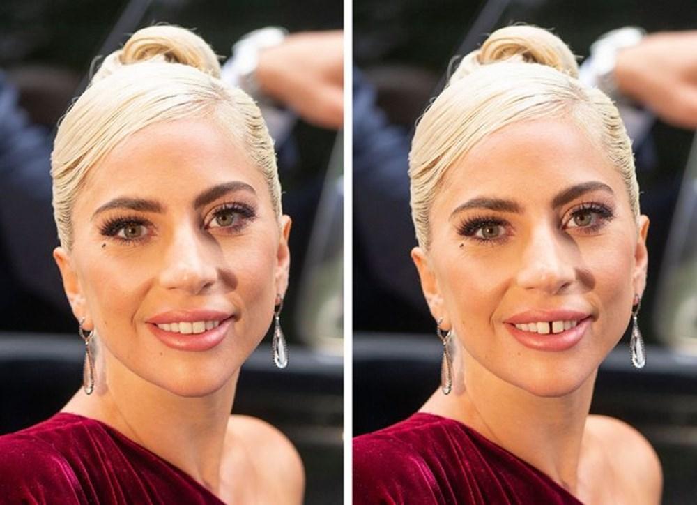 Bir dişin ünlülerin yüz ifadesini ne kadar değiştirebileceğini gösteren fotoğraflar - 12