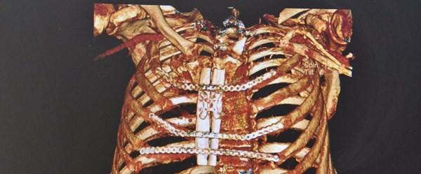 Bacağından göğsüne kemik yapıldı