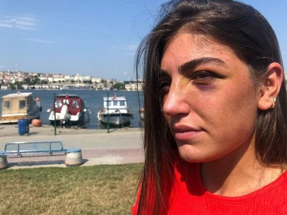 Model Gizem Akbaş'a öldüresiye dayak (Mücahit İsmail Ayta tutuklandı) - 6