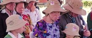 afrika albinolar.jpg