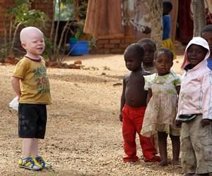 AFRIKA_ALBINO.png