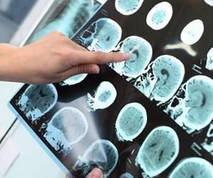 Alzheimer-500x325.jpg