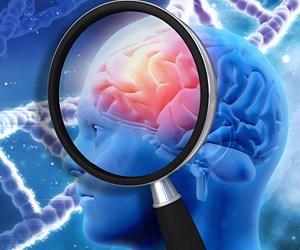 Alzheimer tedavisinde yeni umut ışığı.jpg