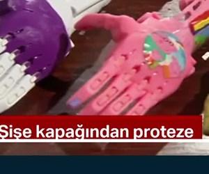 Şişe kapağından proteze
