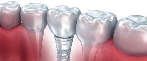 implant 2.Jpeg
