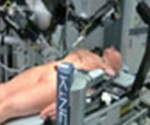 Cerrah robotu ameliyatta izleyin