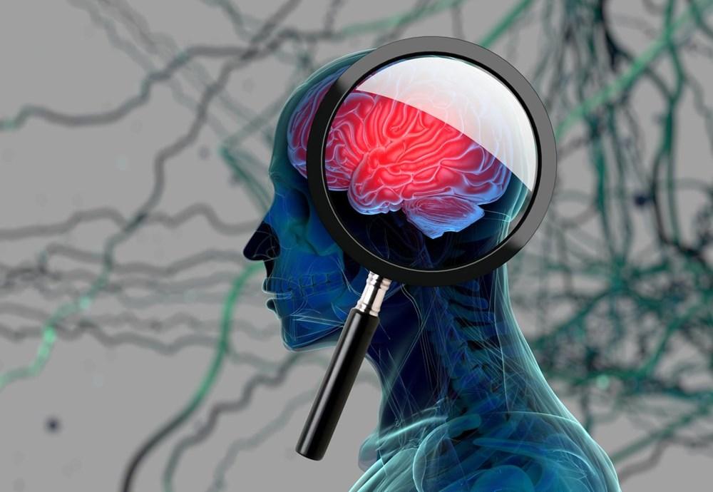 Bilim & Teknoloji SIKICI İŞ YAŞAMI, BUNAMA RİSKİNİ ARTIRIYOR