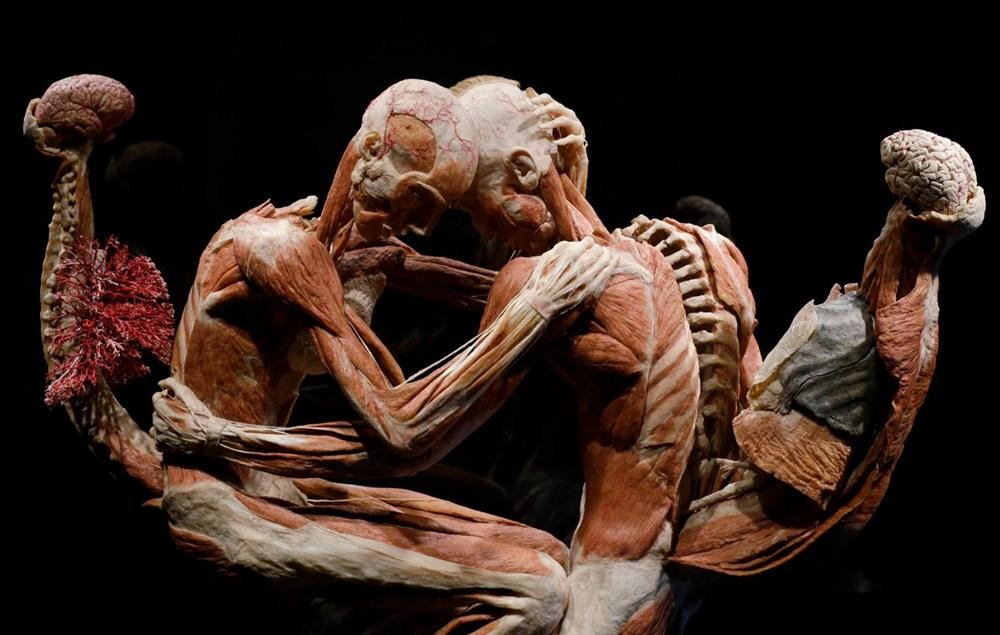 Lordlar Kamarası'ndan kadavra sergisine tepki - 6