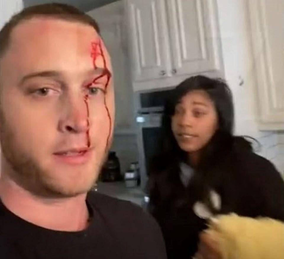 Chet Hanks, Kiana Parker'ı kendisine bıçakla saldırmakla suçladığında bu fotoğrafı paylaştı.