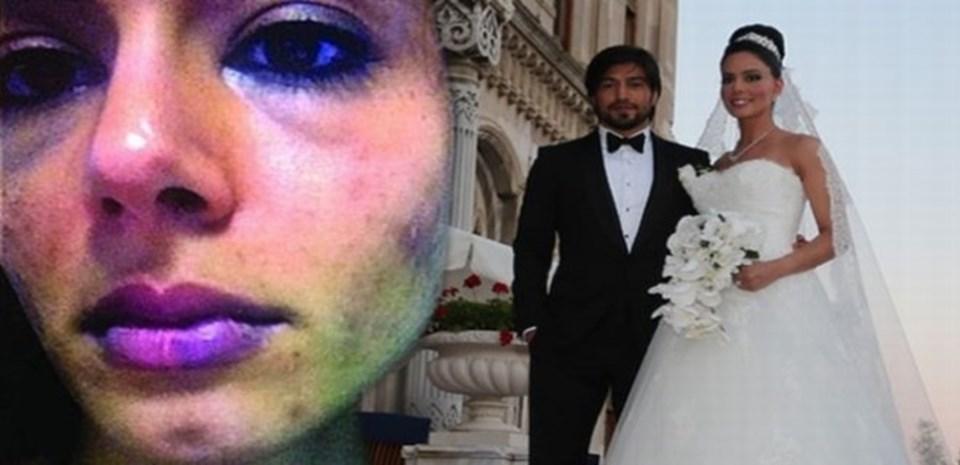 Eylem Toraman eşinden dayak yediğini iddia ederek fotoğraflarını delil olarak sunmuştu.