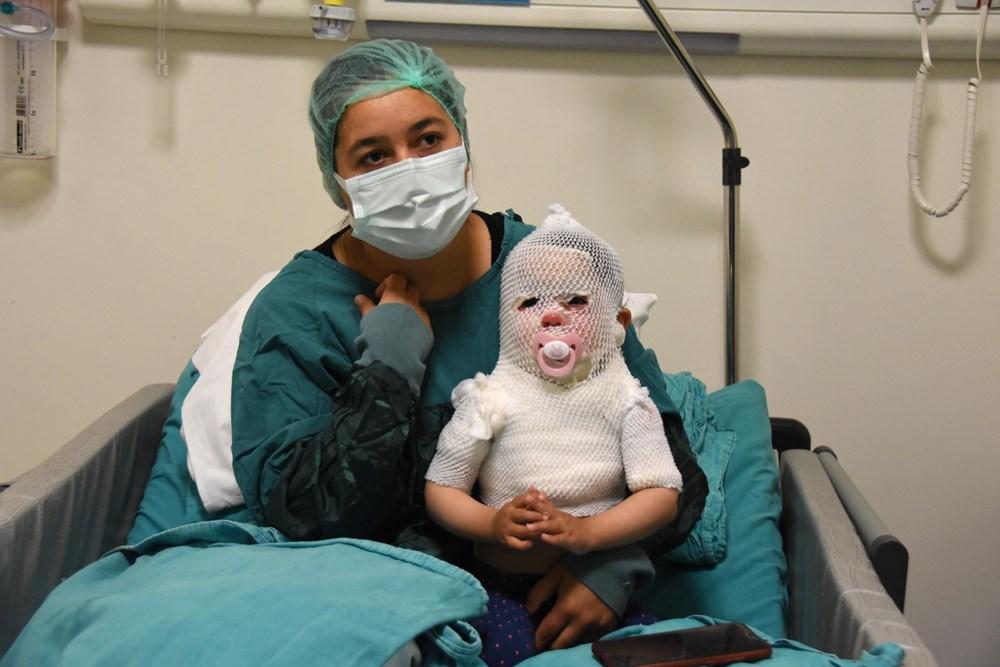 Beril bebekten iyi haber: Hayati tehlikesi yok - 2