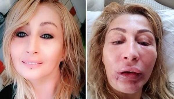 Antalya'da kadının dudağı estetikten sonra çürüdü (Prof. Özlenen Özkan, NTV'de uyarılarda bulundu)