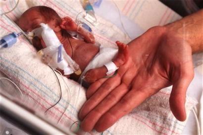 Prematüre bebeklerde hangi sorunlar görülür