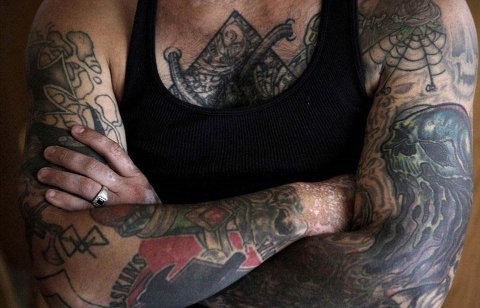 Dövmelerini sildirmek için 25 ameliyat geçirdi