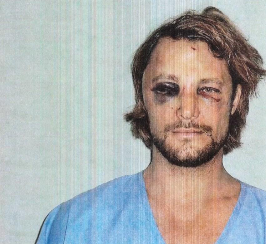 Gabriel Aubry, şiddete uğradığını kanıtlayan fotoğraflarla mahkemeye başvurdu.