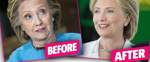 hillary-clinton-facelift-tell-all-book-edward-klein-claims-pp.jpg