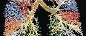 Kanser hastasına yapay bronş
