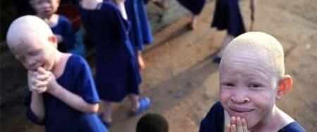 Kara kıtanın albino vahşeti