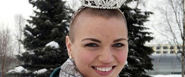 Kraliçe kanserli çocuklar için saçlarını kazıttı