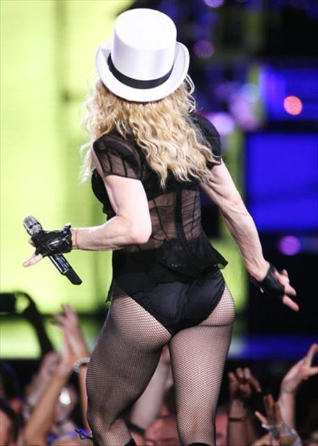 Madonna'nın kolları giderek kötüleşiyor